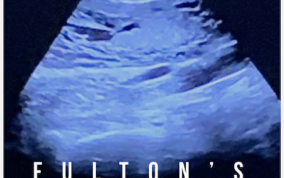 Fulton's Song – video now live on Youtube