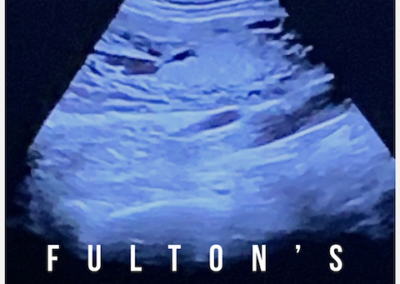 Fulton's Song